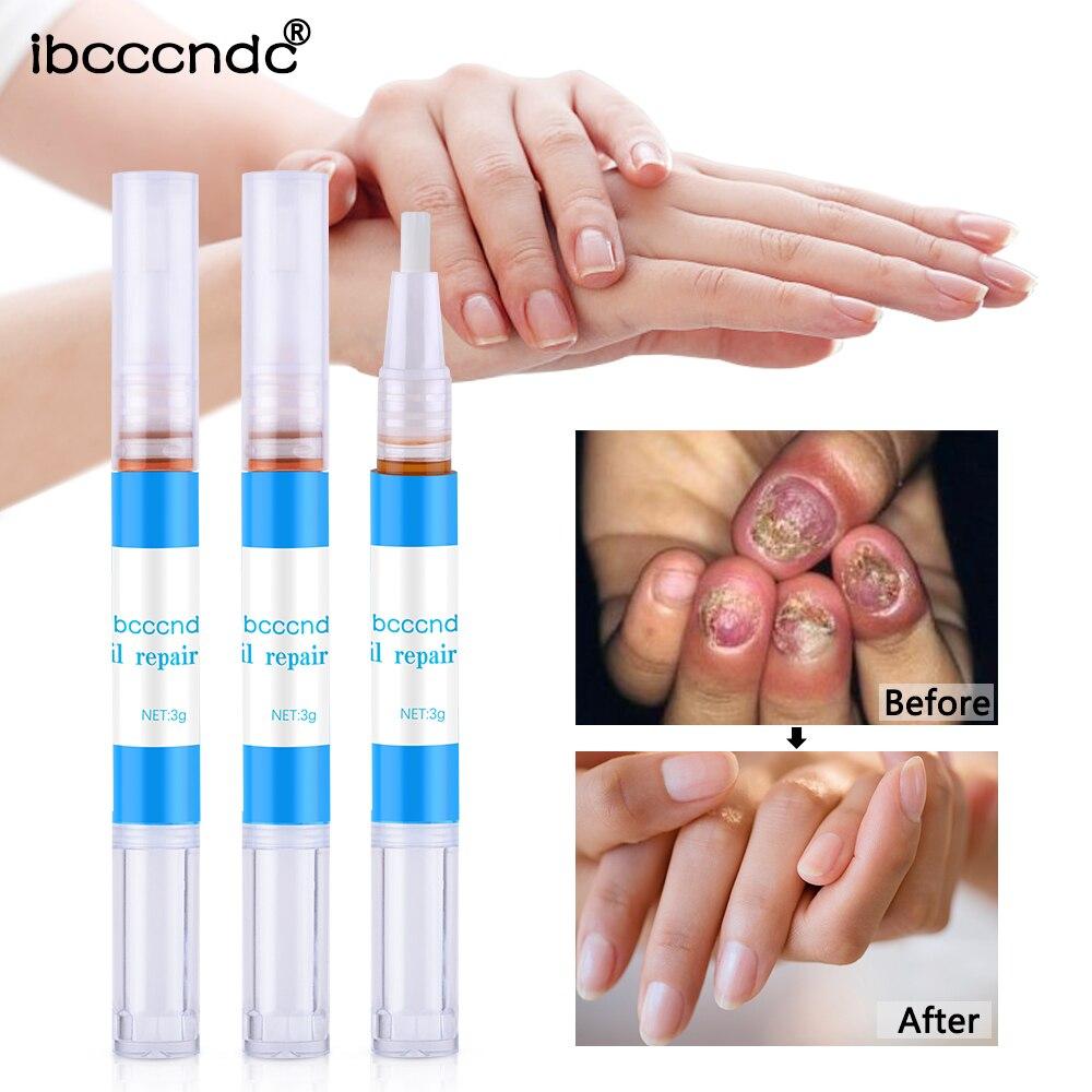 Tratamiento de reparación de hongos de uñas Productos de pluma onychomicosis paronichia Anti infección de uñas hongos bolígrafo de aceite de hierbas chino TSLM1
