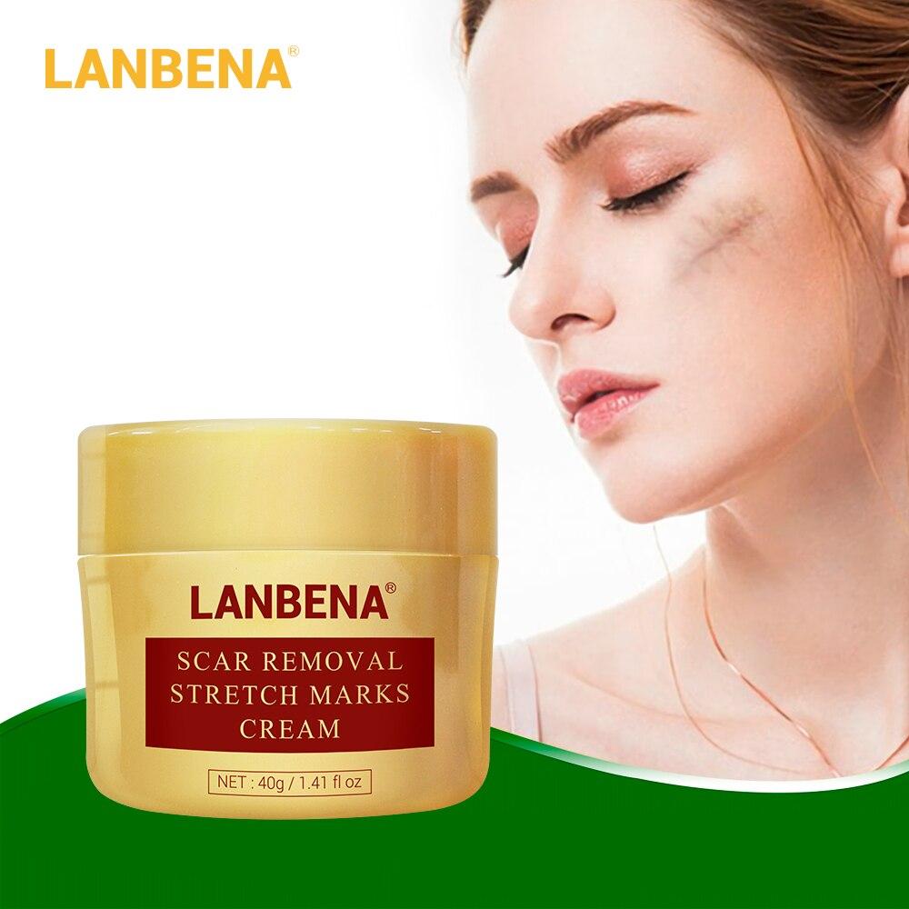 bibamei azelaic acid soothing acne cream fades acne marks shrinks pores gentle skin care repairs acne skin acne treatment LANBENA Acne Scar Removal Cream Repair Acne Spots Acne Treatment Blackhead Whitening Shrink Pores Stretch Marks Skin Care