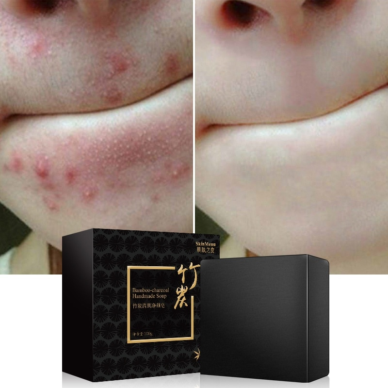 Bambú carbón mar sal acné tratamientos jabón hecho a mano Control de aceite ácaros bacterias Eliminación de la cara cuerpo piel limpieza profunda 100g z1