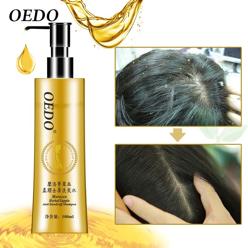 Champú anticaspa marroquí para el cuidado del cabello, Natural, suave, para la...