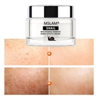 mslam snail remove freckle face cream whitening fades spot cosmetics moisturizing firming anti aging brighten facial skin care