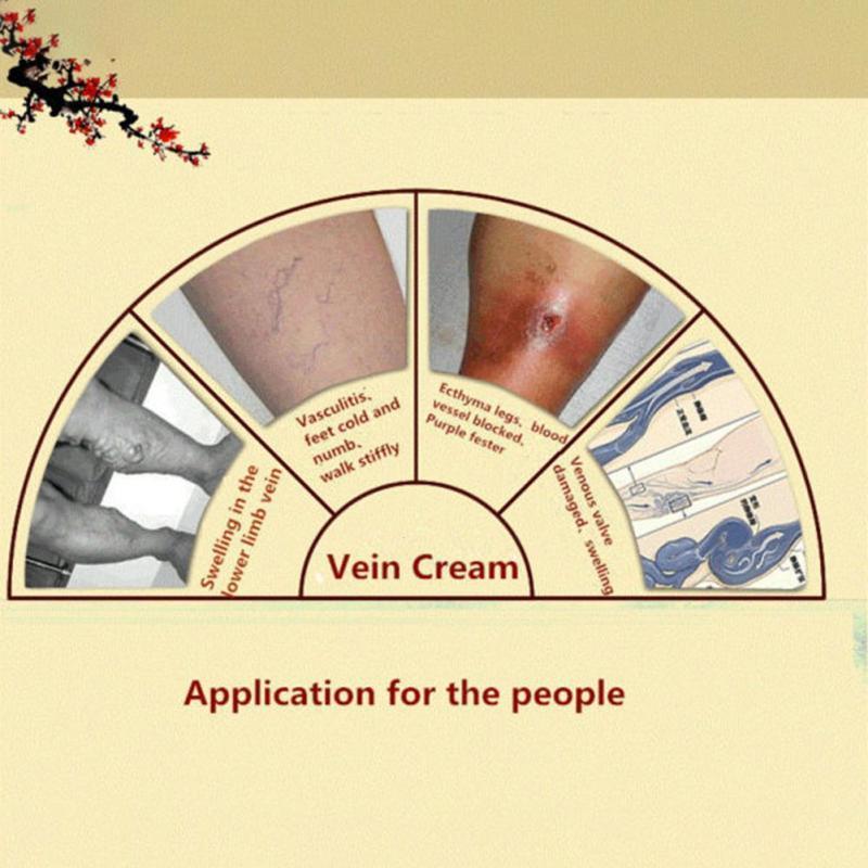 Купить с кэшбэком New 2019 Spider Veins Varicose Treatment Plaster Varicose Veins Cure Patch Vasculitis Natural Solution Herbal Patches Ointment