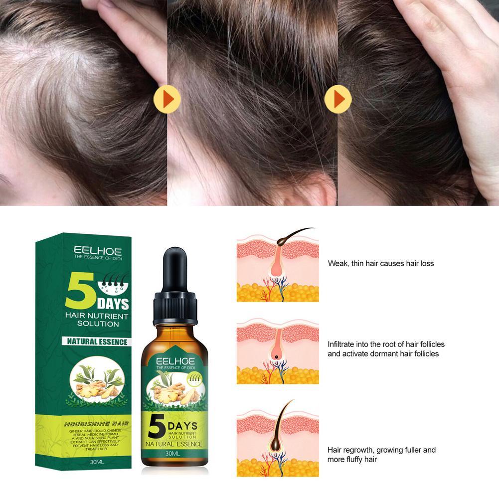hair growth essence oil hair scalp hair loss treatments ginger fast powerful hairs growth serum essential repair hair mask care 30ml Ginger Hair Care Essential Oil Hair Growth Care Essence Growth Anti-hair Loss Essence (Boxed)