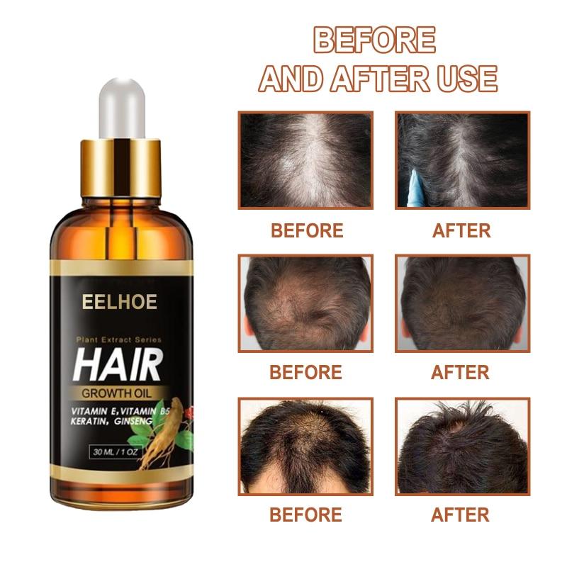 Eelhoe Hair Treatment Essential Oil Essence Original Genuine 100% Hair Loss Liquid Health And Beauty
