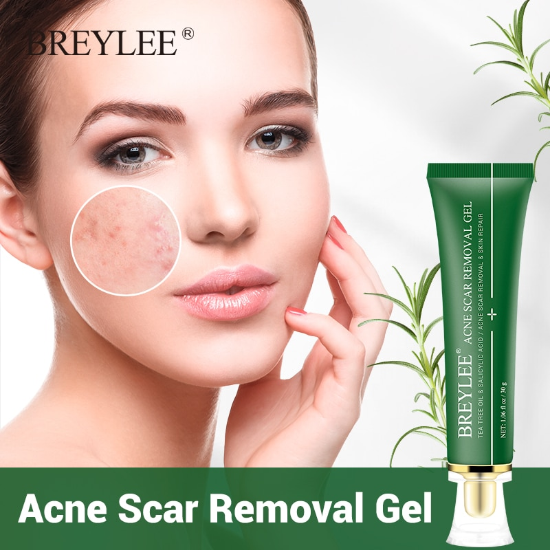 BREYLEE Acne Scar Removal Gel Fade Marks Spots Remove Skin Pigmentation Soothing Prevent Treatment Serum Essence 30g