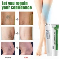 varicose vein soothing set blue light treatment pen varicose vein ointment cream relieve swelling of varicose veins in the leg