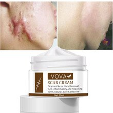 30g Acne Scar Removal Cream Pimples Stretch Marks Face Gel Remove Acne Smoothing Natural Whitening M