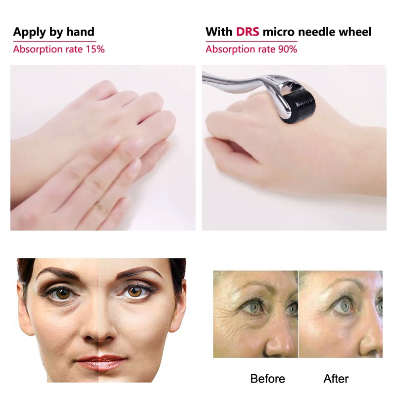 DRS 540 derma roller micro needles titanium mezoroller microneedle machine 0.2/0.25/0.3mm for skin care and body treatment