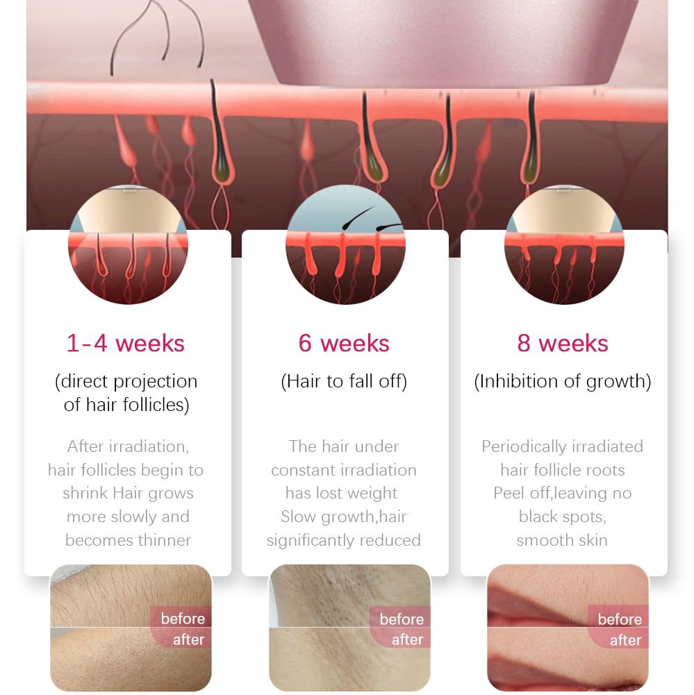 IPL Laser Hair Removal Machine Professional Permanent IPL Laser Depilator Hair Removal Device Epilator for Women Home Use enlarge