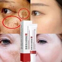 effective whitening freckle cream remove dark spots anti freckle cream fade pigmentation melasma brighten creams skin care 20g