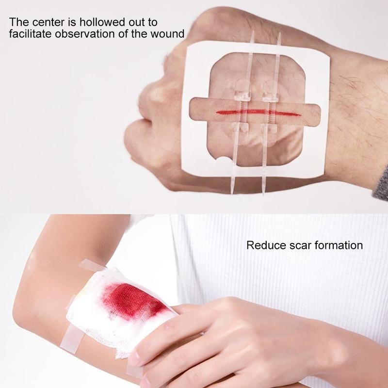 1 pieza de dispositivo de cierre indoloro para heridas sin agujas, Parche de vendaje para heridas sin costuras, tirita reductora de sutura con cremallera