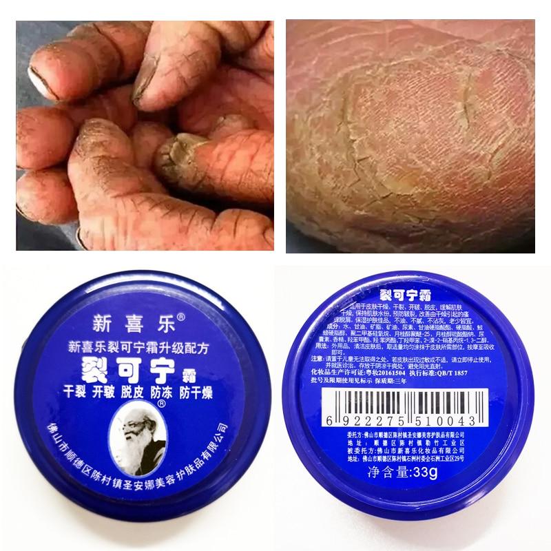 Chinese Foot Cream Herbs Crack Foot Cream Anti-Drying Heel Cracked Repair Cream Removal Dead Skin Ha