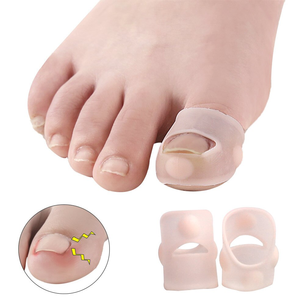 1Pair Silicone Ingrown Toenail Correction Tool Invisible Ingrown Toe Nail Treatment Elastic Straightening Clip Brace