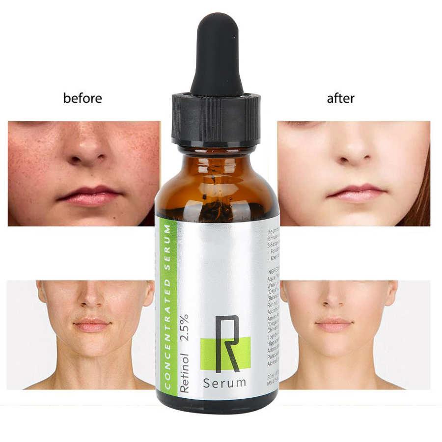 Isner Mile 30ML Retinol, suero hidratante, antiarrugas, brillante, suero para el cuidado del rostro