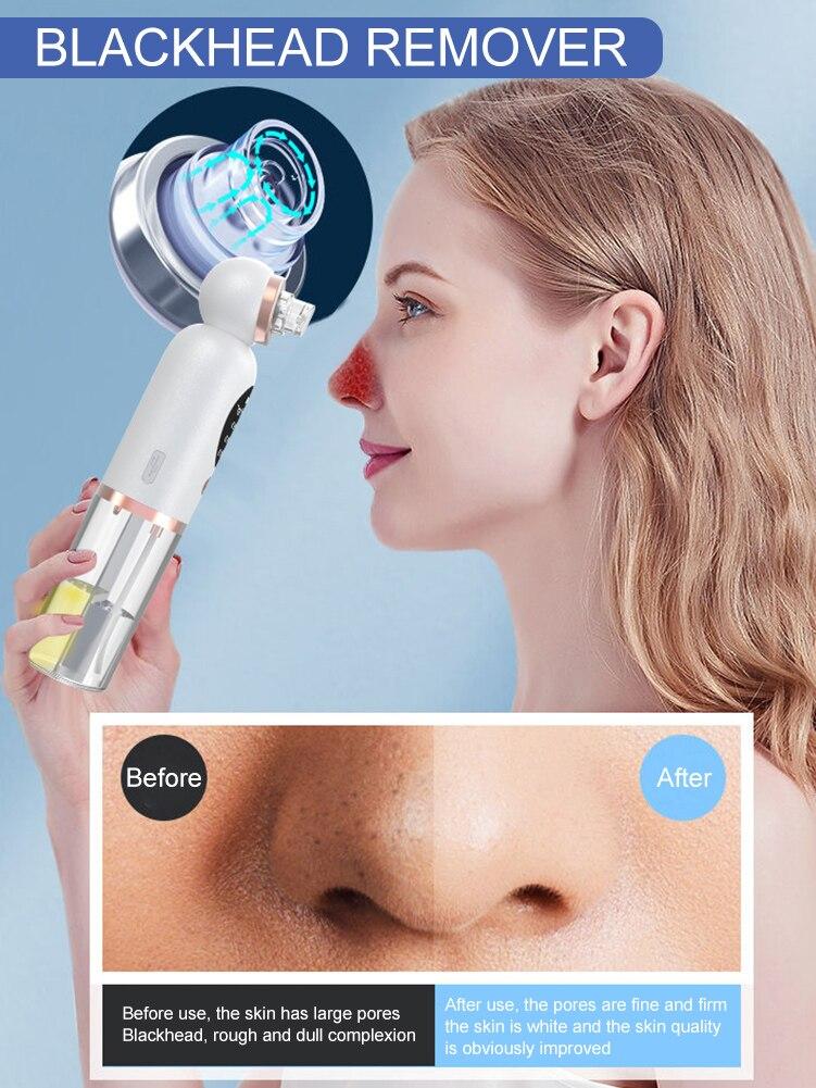 2021, средство для удаления черных точек, небольшое очищающее пузырьковое средство для лица, набор для глубокой очистки пор, перезаряжаемое в... недорого