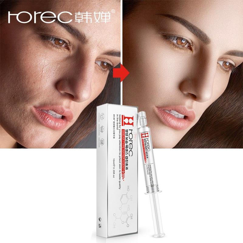 Rorec ácido hialurônico rosto soro branqueamento hidratante psiquiatra poros reparação essência colágeno anti rugas anti-envelhecimento cuidados com a pele