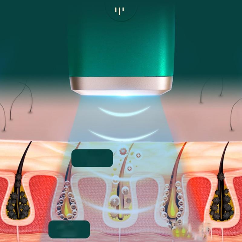 IPL Laser Epilator For Men Women'S Shaver Bikini Face Razor Hair Removal Beauty Appliances Intense Pulsed Light 99w Flash Home enlarge