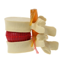 2020 nouvel outil denseignement médical danatomie de hernie discale lombaire de colonne vertébrale anatomique