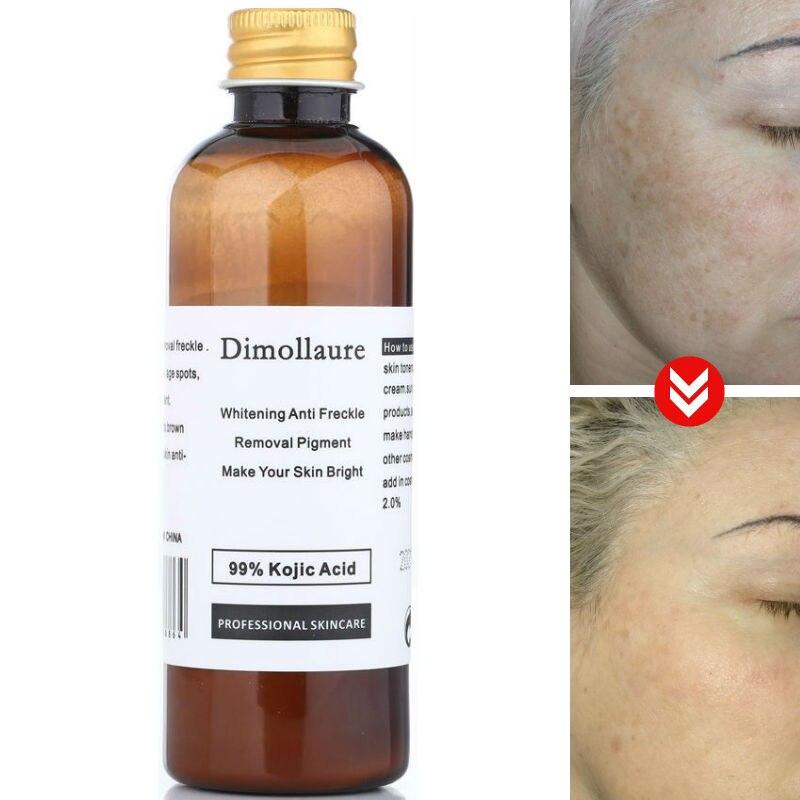Отбеливающий крем Dimollaure, 30 г, чистый 99% кожевой кислоты, для удаления морщин, веснушек, меласмы, акне, шрамов, пигментов, возрастных пятен, меланина, солнечных пятен