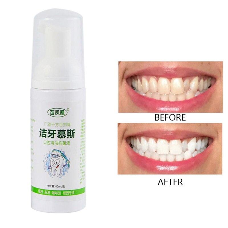 Limpieza de dientes blanqueamiento de pasta de dientes eliminar manchas de dientes espuma pasta de dientes limpieza de boca