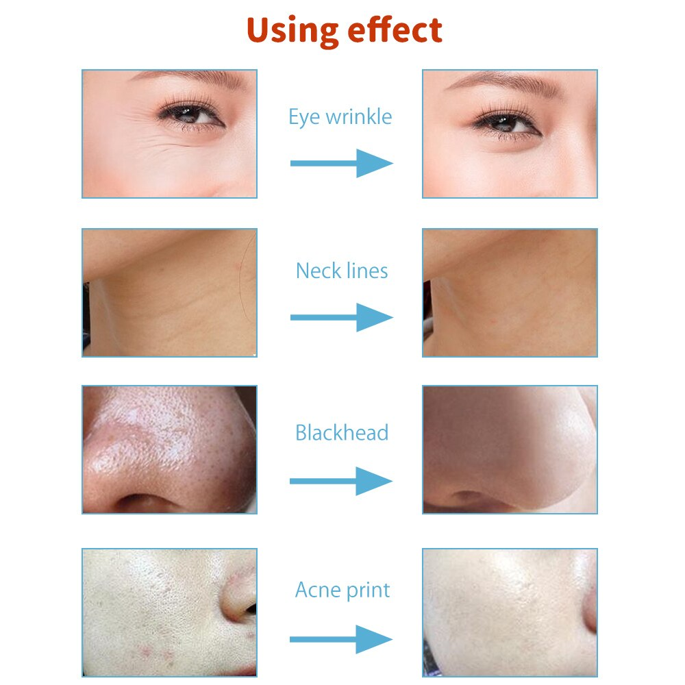Diamond Microdermabrasion Tips 9 Tips 3 Wands Dermabrasion Tip for Facial Skin Peeling Blackhead Remover Face Care Salon Beauty enlarge