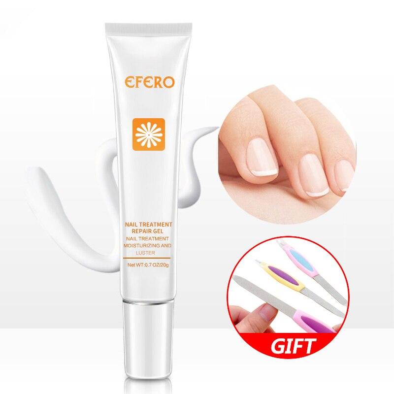 Remedio para hongos en uñas, tratamiento para uñas, crema anti-hongos, infección de uñas, hongos en los pies, onicomicosis paronichia, reparación de cuidado de uñas