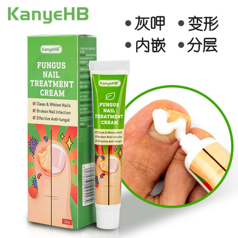 20g Nail Fungus Treat Feet Care Essential Cream Fungal Nail Foot Toe Repair Removal Gel Anti Infect