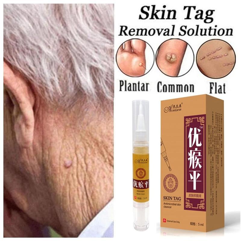Skin Tag Remover Pen 12 Hours Tu Kill Remover Medical Skin Tag Mole Wart Remover Foot Corn Verruca W