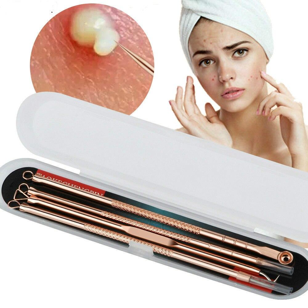 Rosa Oro 4 unids/set Blackhead Comedone acné grano defecto Extractor de vacío herramienta removedor de la espinilla cuchara para herramienta para cuidado de la piel facial