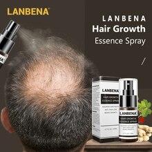 LANBENA Hair Growth Essence Spray Fast Growing Hair Oil Hair Loss Care Spray Beauty Hair & Scalp Tre
