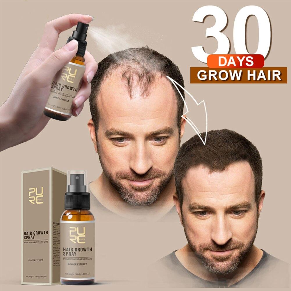 New Hair Growth Spray Fast Grow Hair hair lossTreatment Preventing Hair Loss 30ml Hair Growth Spray for man