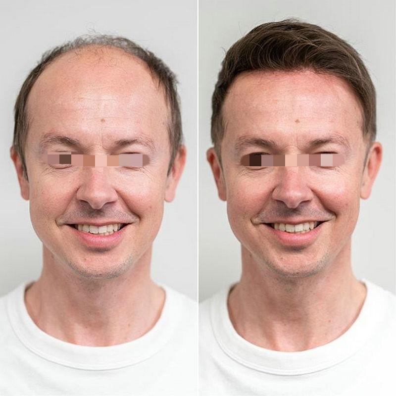 Hstonir 0,03mm Super Dünne Haut Haar Stück Toupet Top Verschluss Perücke Indische Remy Haar Für Männer Haar System Lager h078