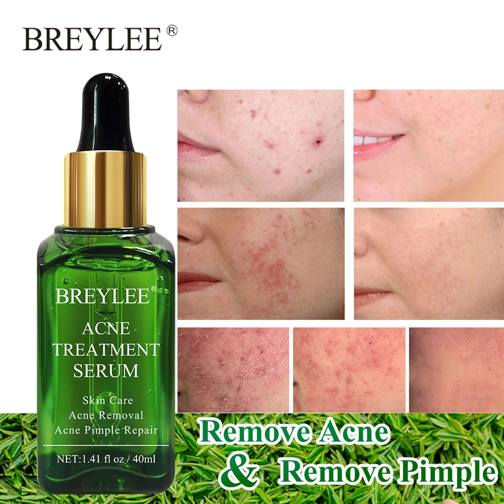 BREYLEE Acne Treatment Face Serum Remove Acne Scar Anti Acne Pimple Marks Moisturizing Whitening Shrink Pore Facial Skin Care