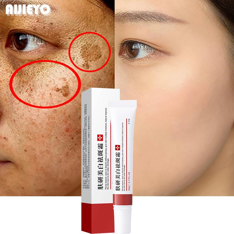 Whitening Freckle Cream Remove Melasma Cream Remove Dark Spots Melanin Melasma Remover Brighten Skin Anti-Aging Skin Lightening
