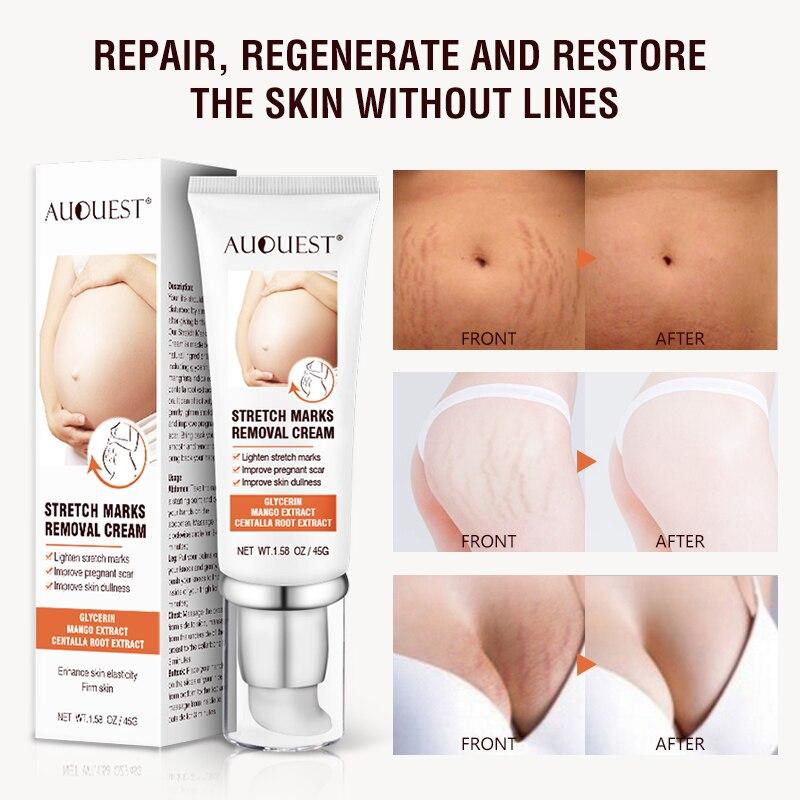 AUQUEST Stretch Marks Removal Skin Care Maternity Cream For Pregnant Women Stretch Mark Maternity Scars Buttock Breast Body Care недорого