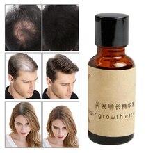 20ml Ginger Extract Dense Hair Fast Sunburst Hair Growth Essence Restoration Hair Loss Liquid Serum