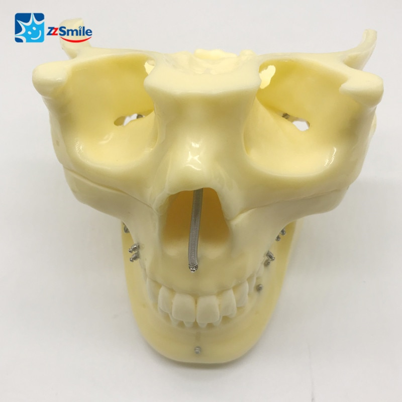 M2016 Implant Practice Model For Showing the Exact Position for Ortho Implant