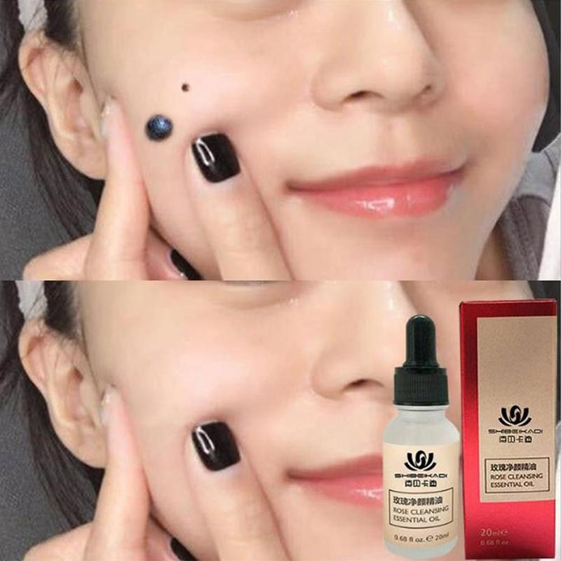 Mole & Skin Tag Removal Solution Painless Mole Skin Cream Tag Face Oil Spot Wart Freckle Removal Hot Dark Plaster Removal S F0N7 it s skin it s skin its skin