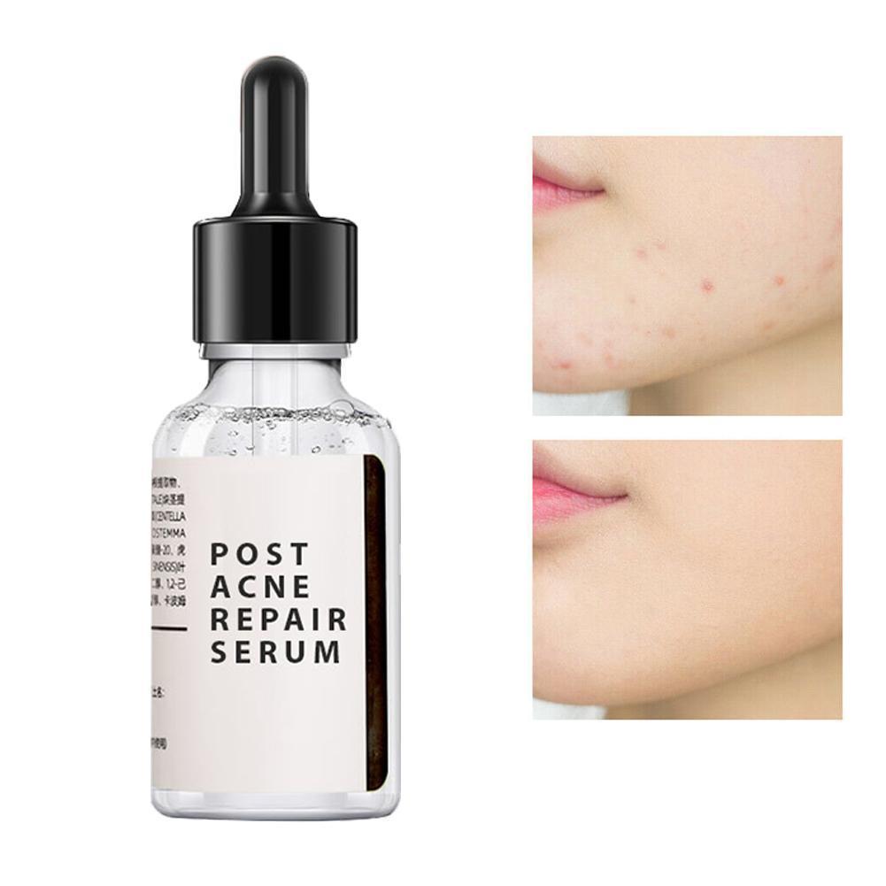30ml Salicylic Acid 2% Solution Removes Acne Face Serum Shrinks Pore Moisturizing Essence Fade Spot