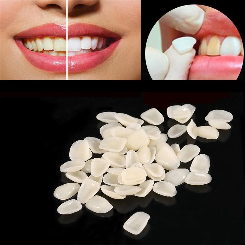 70pcs/bag Dental Ultra-Thin Resin Teeth Veneers Anterior A1 A2 Temporary Crown Dentist Materials Tools