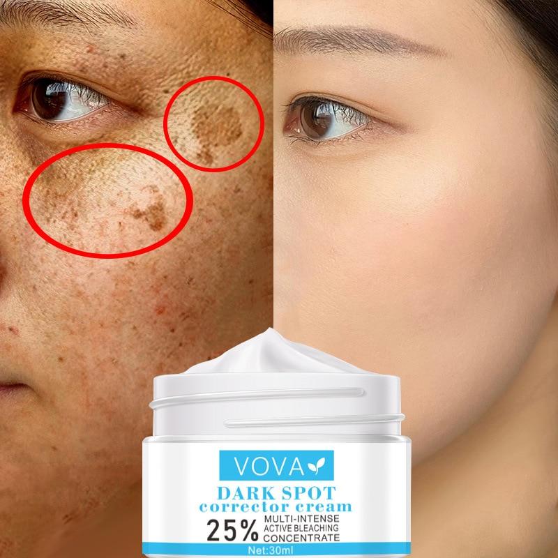 face care cream dark spot remover skin lightening cream dark skin care anti freckle whitening cream 50g 2020 Freckle Cream, Melanin, Acne Spot Removal, Whitening, Skin Care, Moisturizing and Repair, Effectively Diminish Dark Spots