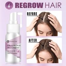 HAIRCUBE Hair Growth Essence Spray Hair Loss Treatment Stop Hair Loss Liquid Spray Hair Growth Essen
