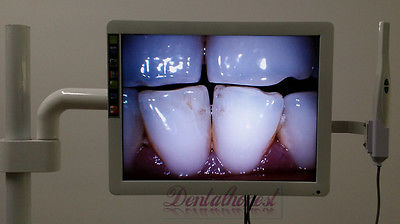 Dental 8-LED Intraoral Camera with 17