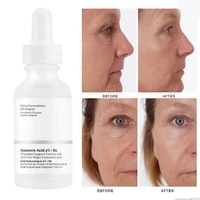 the ordinary hyaluronic acid 2 multiple hydration rich in hyaluronic acid and vitamin b5 smooth skin mild no irritation 30ml