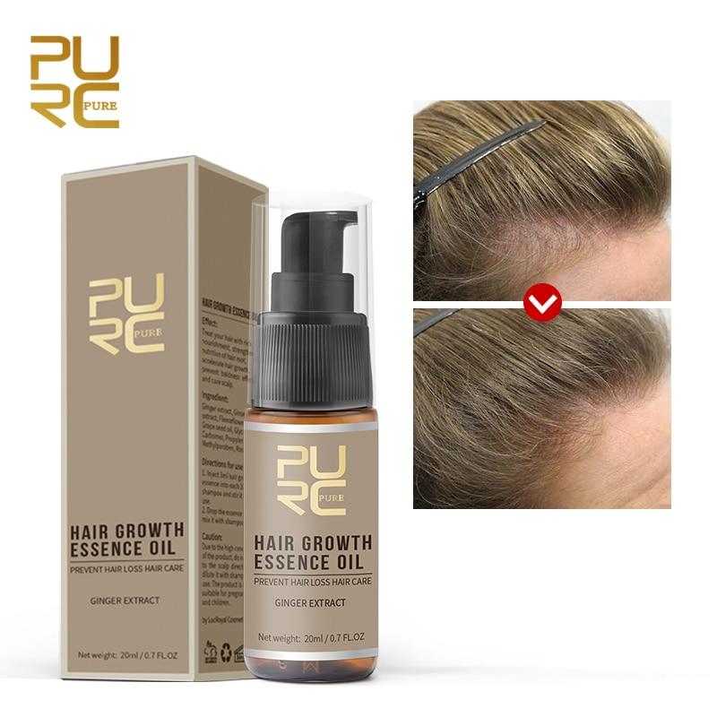 Aceite de esencia puro para el crecimiento del cabello, extracto de jengibre...