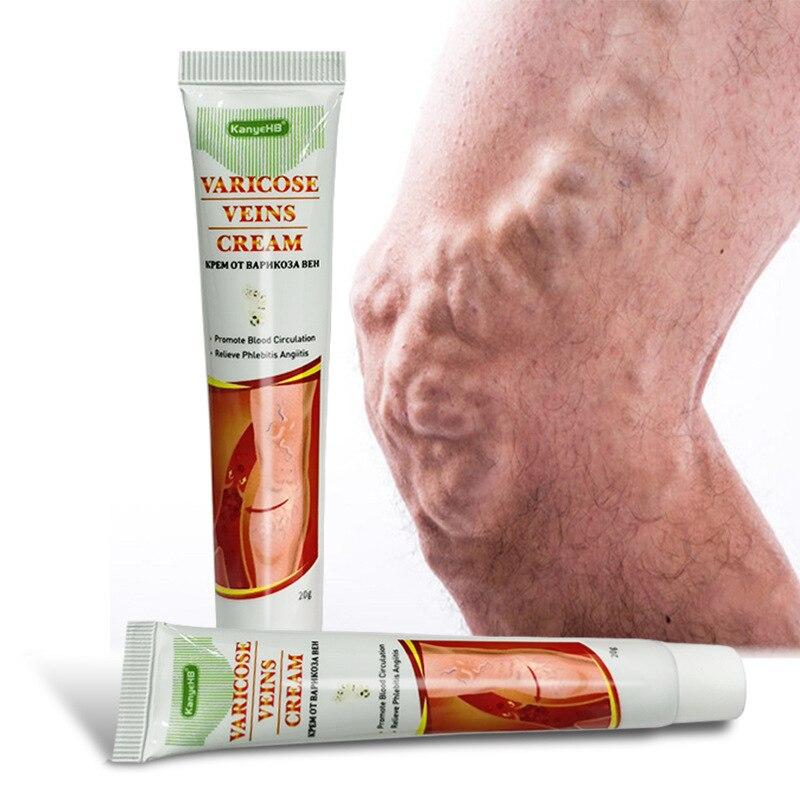 Мазь от варикозного расширения вен, Красная Нить крови, внутривенная мазь для наружного применения на ногах, смазка для снятия напряжения недорого