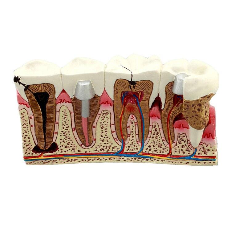 Модель для обучения стоматологии, стандартная модель кариеса, модель анатомии, 1 шт.