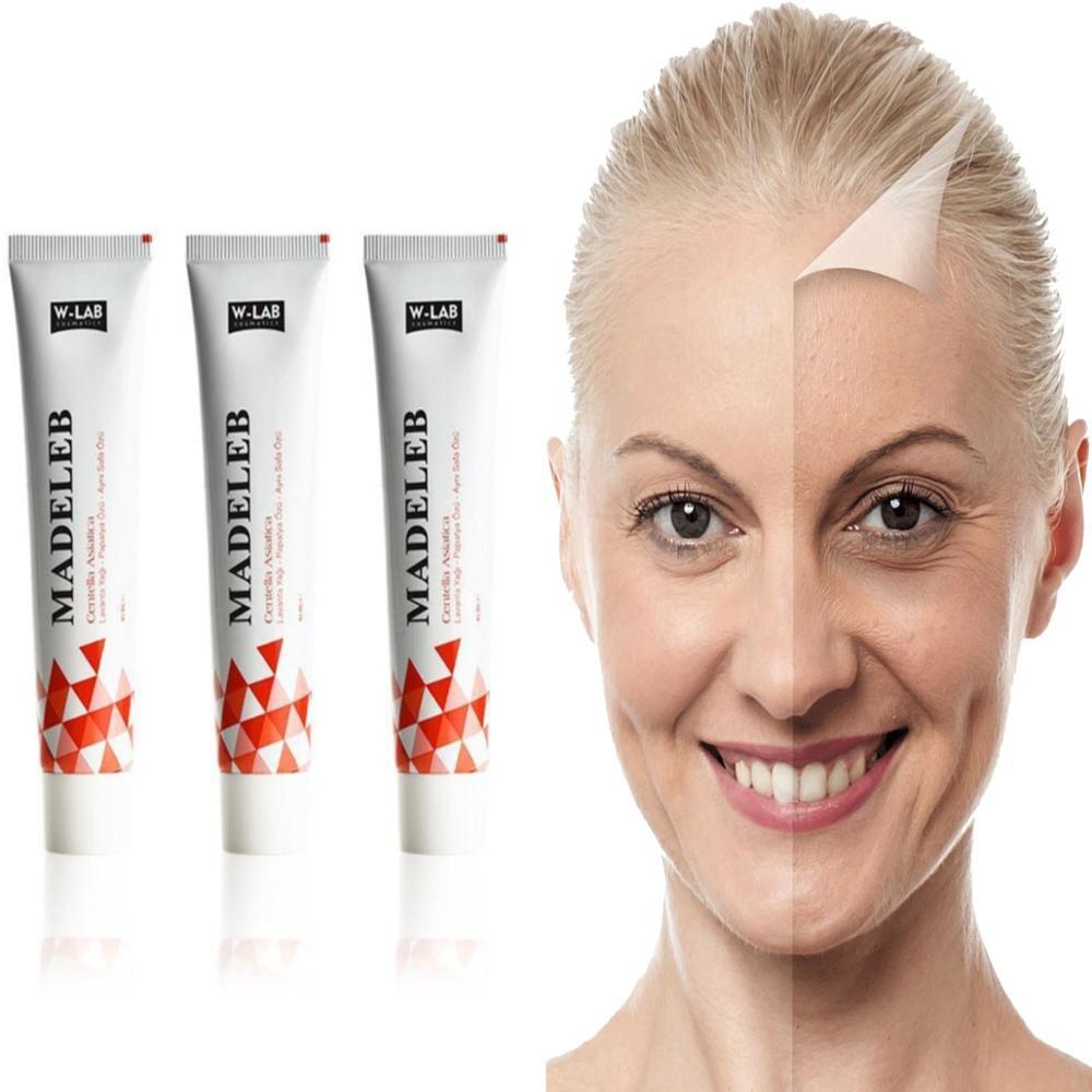 Madeleb Skin Renewal Face Cream Blackhead Remover 1/2/3 Pcs 40 ml Skin Wounds Eczema Acne Problems Cell Regeneration Original