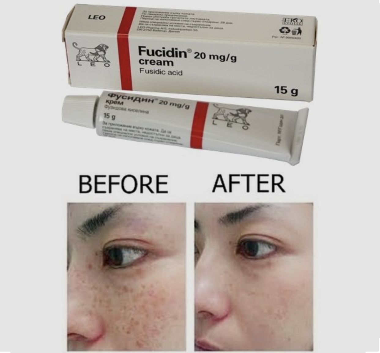 AliExpress - Fucidin 20 mg/g Face Cream acne, blackheads, herpes on the lips treatment cream, beautifying face Original Fast shipping
