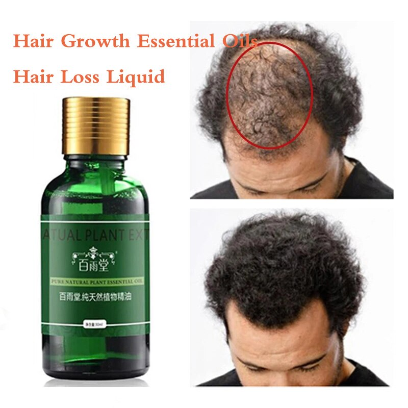 Hair Care Hair Growth Essential Oils Essence Original Authentic 100% Hair Loss Liquid Health Care Be